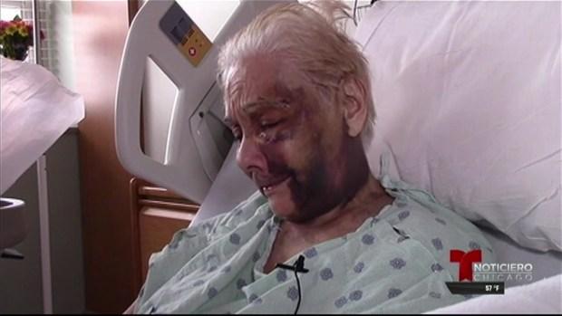 Abuelo hispano de 91 años sufre brutal ataque